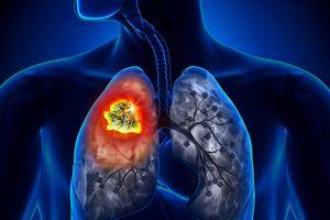 Phổi của người hút thuốc bị tổn hại thế nào?