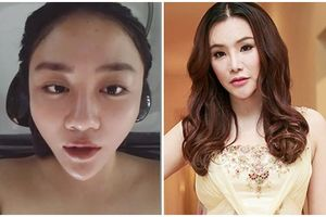 Sao Việt phẫu thuật cằm V-line, người đổi đời, kẻ mang khuôn mặt biến dạng
