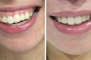 Phẫu thuật hở lợi - Trả lại nụ cười đẹp cho bạn