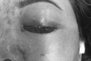 Khách bị mù mắt sau tiêm filler, chủ spa bị phạt 120 triệu đồng