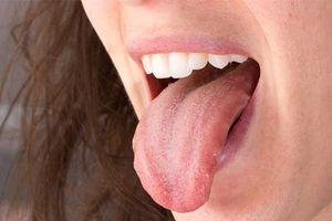 Miệng nhiều nước bọt cũng chẳng thể chủ quan, vì có thể là do những nguyên nhân này