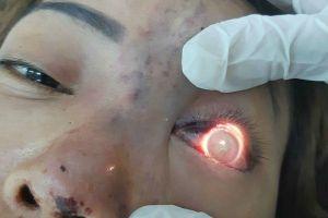 Đình chỉ 9 tháng, phạt 120 triệu đồng cơ sở spa làm mù mắt bệnh nhân