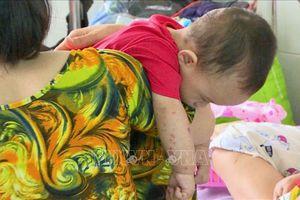 Bệnh chân tay miêng bùng phát, trẻ 1-2 tuổi nhập viện tăng nhanh