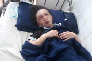 Hé lộ nguyên nhân nữ nhân viên Spa bất ngờ bị nhóm người bắt lên taxi rồi đánh dã man vào vùng mặt