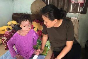 Vinh danh người phụ nữ bán 2 nhà để chăm sóc trẻ bị ly thượng bì bọng nước