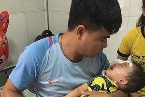 Bé trai 2 tuổi bị chó nhà cắn nát mặt phải