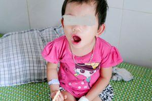 Chưa có vaccine phòng bệnh tay chân miệng, làm sao tránh?