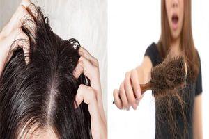 Dấu hiệu trên mái tóc cảnh báo nhiều bệnh lý nguy hiểm mà chị em thường phớt lờ