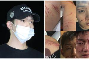 Công bố thêm hình ảnh về vụ ẩu đả, bạn trai Goo Hara lĩnh thêm nhiều gạch đá