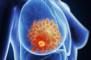 2.400 phụ nữ sẽ được khám tầm soát ung thư vú miễn phí