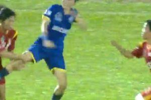 'Cầu thủ Than Khoáng Sản khi bị 5-6 người đạp vào mặt'
