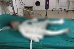 Bé trai bị bố dượng tẩm xăng đốt bỏng 98% đã qua đời