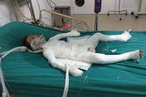 Xót thương bé trai 6 tuổi bị bố dượng châm lửa đốt nhà qua đời