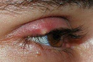 Mẹo chữa lẹo mắt 'thần tốc' tại nhà không để lại sẹo xấu