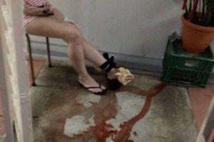 Tưởng bị mèo cào vào chân, người phụ nữ hãi hùng khi nhìn thấy thứ bên dưới
