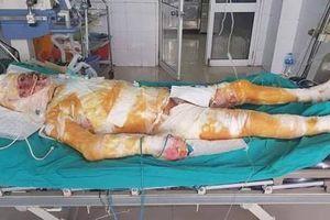 Chàng trai bị bỏng 95% cơ thể ở Hà Nam do cứu hàng xóm khỏi hỏa hoạn đã qua đời