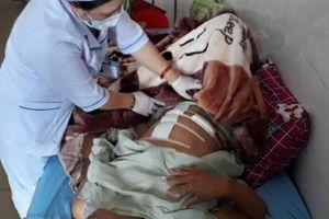 Lâm Đồng: Nông dân bị bắn đạn chì ngã gục khi làm vườn