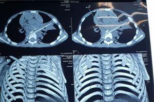 Bé trai bị que xiên thịt găm vào ngực suốt 8 tháng