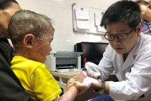 Xót xa bé 5 tuổi bị bong tróc da toàn thân, bố mẹ không có tiền cho con chữa bệnh