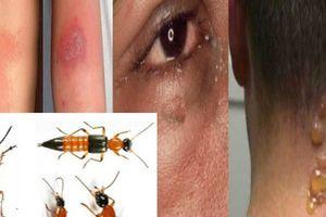 Độc tố kiến ba khoang độc hơn nọc rắn, cẩn thận xử lý kẻo rước họa vào thân