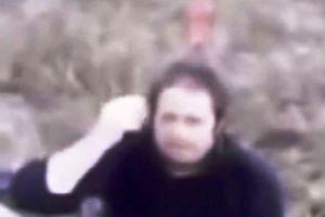 Người đàn ông cắm thẳng con dao 20 cm vào sọ để… dễ thở