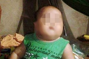 Thông tin từ người thân của bé 22 tháng tuổi tử vong do truyền dịch
