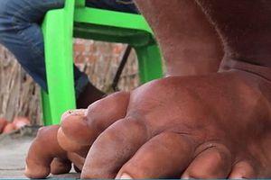 Việt Nam chính thức xóa sổ bệnh chân voi