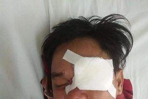 Khởi tố kẻ đòi nợ đâm mù mắt con nợ ở Bình Thuận