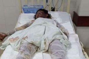 Quảng Nam: Cả 3 người trong gia đình bị bỏng nặng tử vong