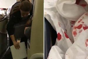 15 người bị thương khi xảy ra hỗn loạn nghiêm trọng trên máy bay
