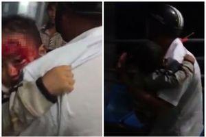 Sở Y tế Đắk Lắk lên tiếng về clip cha ôm con đầy máu tìm bác sĩ