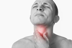 Viêm họng mạn tính có dẫn đến ung thư?