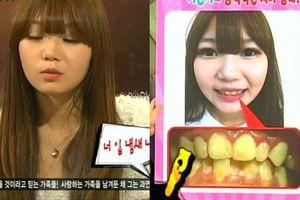 Cô gái trẻ gây sốc với thói quen 10 năm không đánh răng, thường ăn kẹo chung với chó