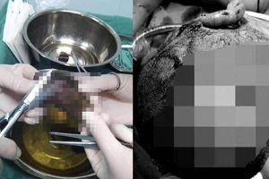 Chó hoang cắn khắp đầu mặt bé trai, 10 vết rướm máu kinh dị...