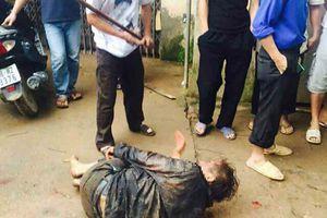 Hải Phòng: Hỗn chiến với trai làng, trộm chó bị đánh tử vong