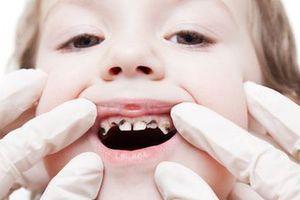 Bác sĩ cảnh báo bú bình, ngậm ti giả gây nhiều tác hại cho trẻ