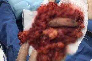 Nạo hai khối u to bằng bàn tay vì nâng mông bằng silicone lỏng