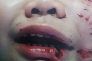 Sốc: Bệnh nhi 2 tuổi bị chó nhà hàng xóm cắn khiến nhãn cầu trật khỏi hốc mắt