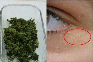 Nghiền nhuyễn vài lá này để đắp mặt, quầng thâm đen xì hay mụn thịt chi chít quanh mắt đều mất sạch sau 10 ngày