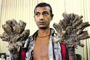 'Người cây' Bangladesh bước đầu phẫu thuật cắt bỏ 5kg 'vỏ'