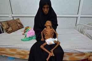 Nạn đói ở Yemen có thể trở thành thảm họa kinh hoàng nhất lịch sử