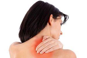 Giảm đau vai gáy tức thì chỉ bằng những nguyên liệu có sẵn trong nhà