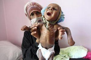 Trẻ Yemen còn da bọc xương vì nạn đói thảm khốc