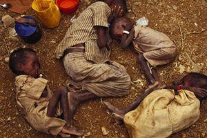 Cuộc sống như địa ngục của trẻ em ở Yemen