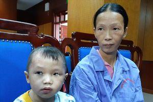 Em bé vảy nến ở Cao Bằng hồi phục ngoạn mục sau 10 ngày được cứu từ bản làng