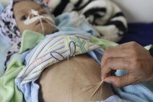 Saudi Arabia và bi kịch nội chiến tại Yemen