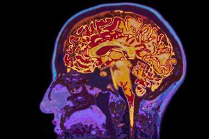 Bay vào vũ trụ làm thay đổi cấu trúc não bộ