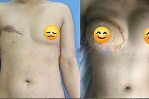 Người phụ nữ nhiều năm phải nhét giẻ vào ngực vì...ung thư vú