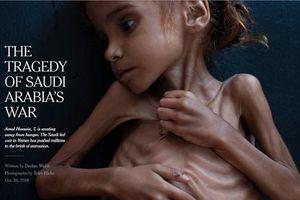 'Kiểm duyệt' ảnh em bé Yemen suy dinh dưỡng, Facebook bị phản đối