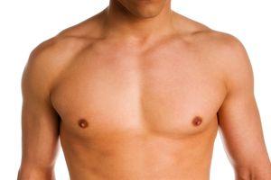 Cách hiệu quả để ngăn ngừa ung thư vú ở nam giới